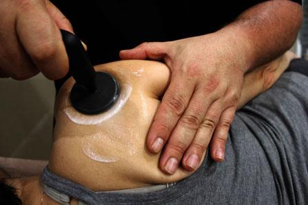 La diatermia de Indiba Activ se combina con ejercicios de hombro de Codman