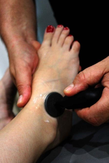 Con Indiba Activ se previene la cicatrización desordenada de los tejido y las adherencias