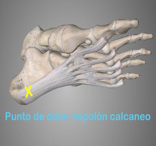 El espolón calcáneo, esta lesión consiste en una calcificación en el tubérculo posteriorinterno del hueso calcáneo del pie