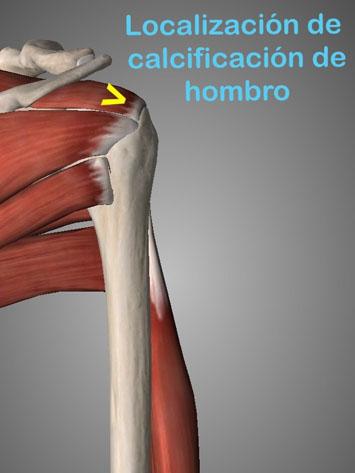 La tenidonpatía de hombro es una lesión aparece por movimientos repetitivos y sobreesfuerzos del hombro que provocan una inflamación y calcificación del tendón