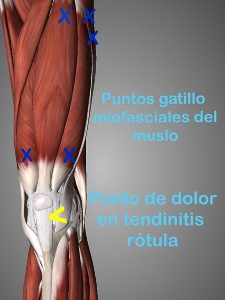 La tendinopatía de rótula es una lesión consiste en una inflamación por sobreuso del tendón rotuliano localizado en la parte inferior de la rótula uniendola con la tibia