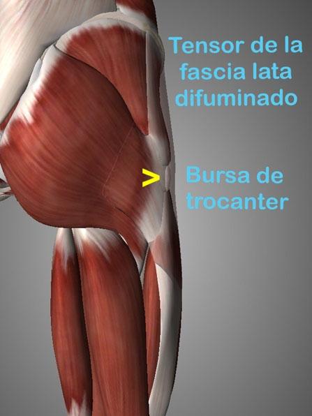 La trocanteritis o bursitis trocantérea, esta lesión se caracteriza por dolor en la cara lateral de la cadera y en ocasiones llega hasta la rodilla causando imptencia funcional