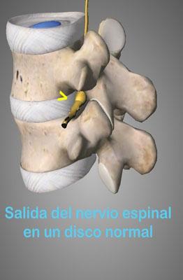 Las hernias discales son abombamientos o herniación de la parte blanda del disco hacia la zona exterior o anillo fibroso, esa deformidad puede irritar la raíz nerviosa adyacente