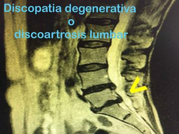 La lumbociática consiste en una irritación del nervio ciático y es una de las afecciones más dolorosas e incapacitantes que suelen sufrir los pacientes con dolor lumbar o lumbalgia